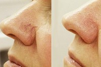 Удаление дефектов кожи лазером