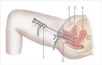 Анализы для гистероскопии матки