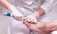 Безболезненное удаление вросших ногтей