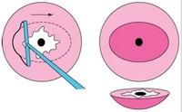 Конизация шейки матки как проходит операция