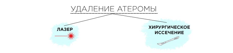 схема удаления атеромы