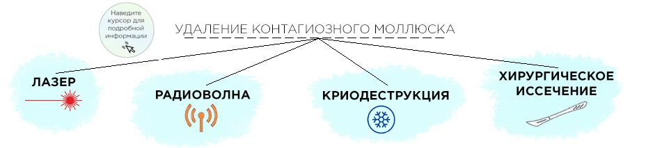 схема удаления контагиозного моллюска