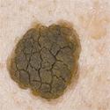 Себорейная кератома