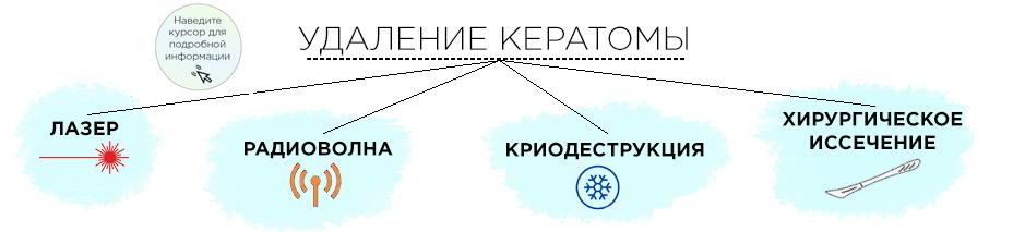 методы удаления кератом
