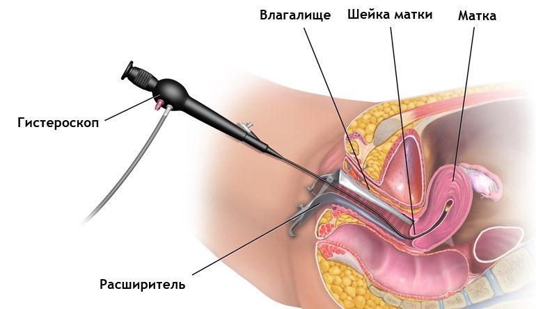 Полип в матке: симптомы, диагностика, лечение, что такое полипы, как они возникают
