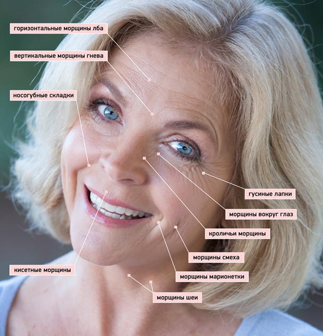 Расположение мимических морщин на лице
