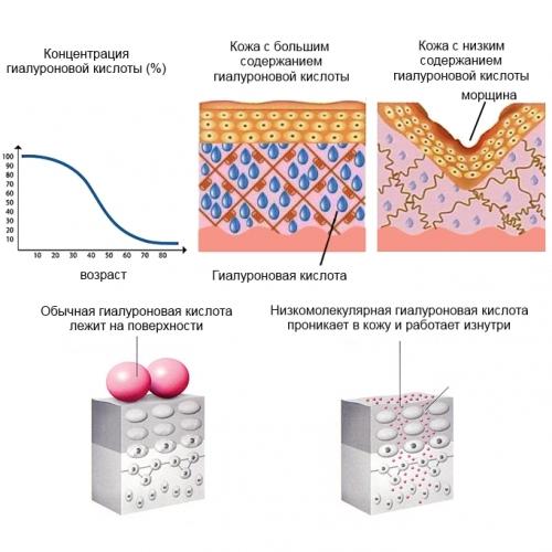 Роль гиалуроновой кислоты (ГК) в организме